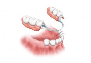 μερική-οδοντοστοιχεία