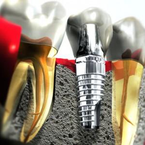 Οδοντικά εμφυτεύματα