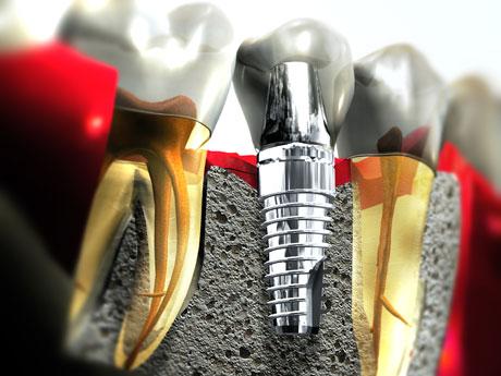 Τι είναι η θεραπεία με τοποθέτηση οδοντικών εμφυτευμάτων; (Video)