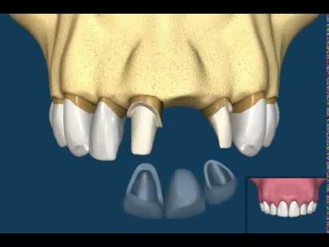 Οδοντικό εμφύτευμα vs γέφυρα!