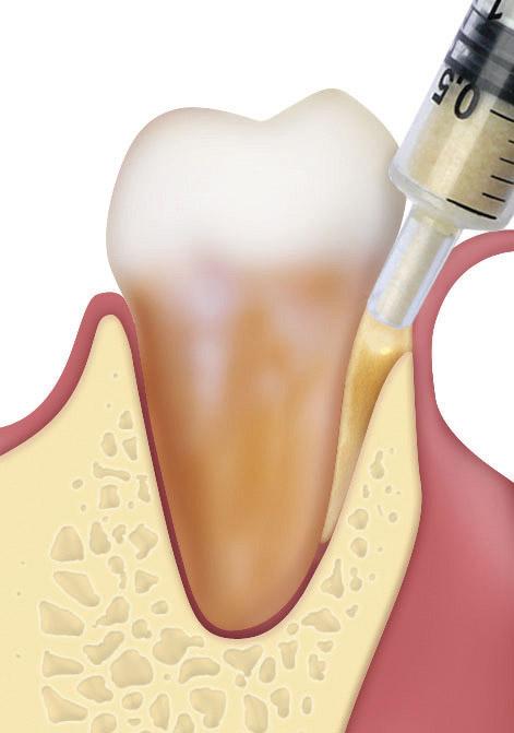 Οδοντική χειρουργική