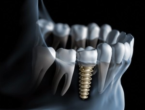 Dental-Implant-12