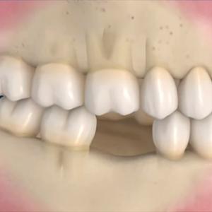Συνέπειες, όταν το χαμένο δόντι δεν αντικαθίσταται (Βίντεο)