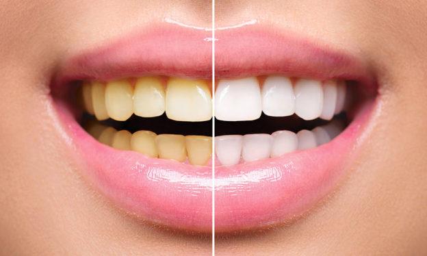 Αποχρωματισμός Δοντιών